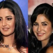 Katrina Kaif Looks After Lip Surgery